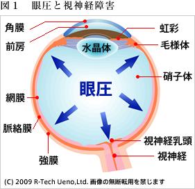 眼圧と視神経障害